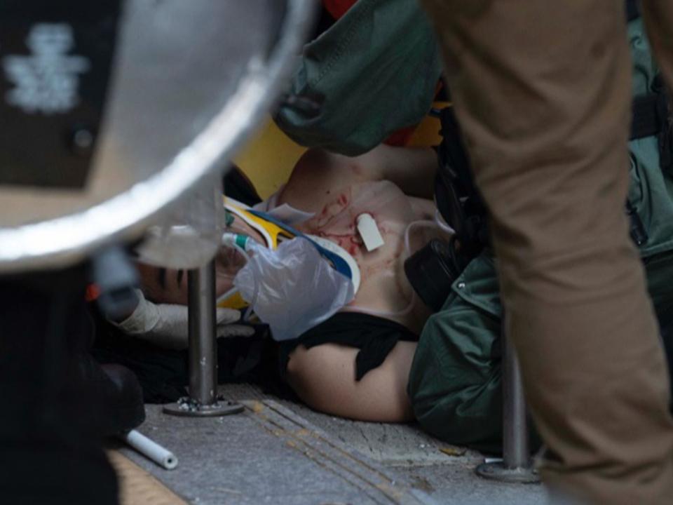 反送中港警開6槍實彈逮180人  學生左胸中彈倒地